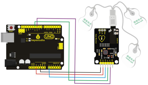 Ks0261 Keyestudio Ad8232 Ecg Measurement Heart Monitor